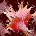 Рак. Лечение дендритными клетками